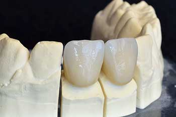 Ceramic Crowns in Mattituck