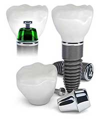 Dental Implants in Mattituck