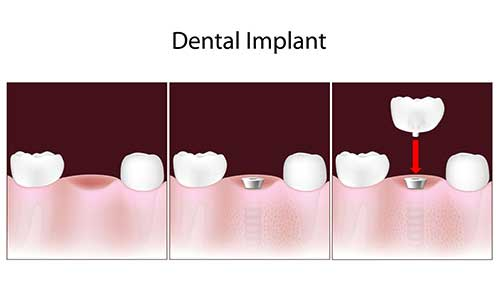 Mattituck Implant Dentistry
