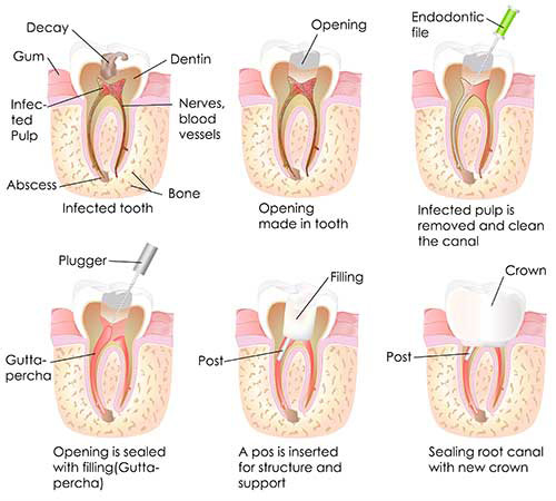 Root Canal Therapy in Mattituck
